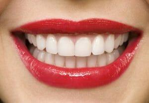 zambet, dinti albi, clinicadrmelnic