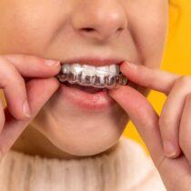 aparat dentar preț