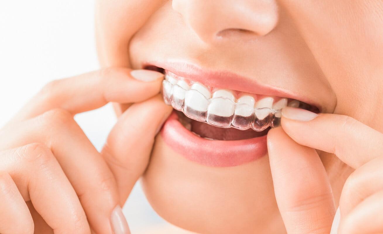 avantajele aparatului dentar invisalign